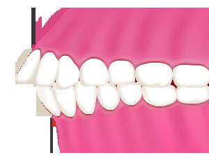 豊中で上顎前突(出っ歯・反っ歯)の矯正を裏側矯正で行うながよしデンタルクリニック