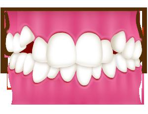 豊中で裏側矯正での叢生(乱ぐい歯、八重歯)の治療なら、ながよしデンタルクリニック