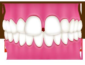 豊中で空隙歯列(すきっ歯)の裏側矯正なら、ながよしデンタルクリニック