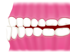 豊中で下顎前突(受け口)の治療を行うマウスピースで行う矯正歯科ならながよしデンタルクリニック