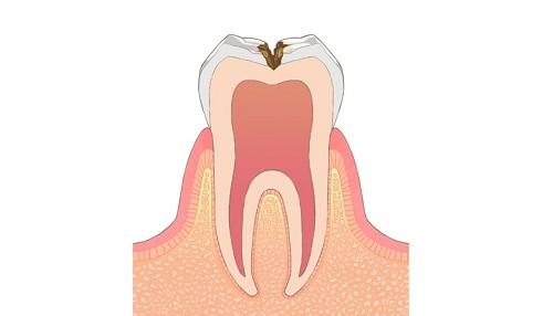 虫歯になっている親知らずの抜歯を行う豊中のながよしデンタルクリニック