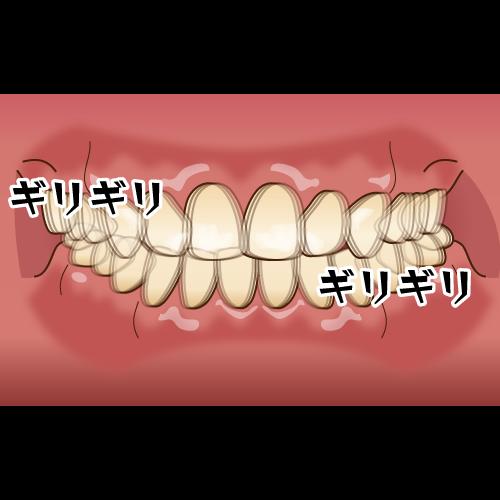 歯ぎしり予防にナイトガードを作製するながよしデンタルクリニック