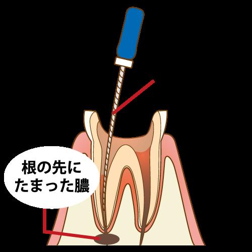 膿による根管治療中の痛み