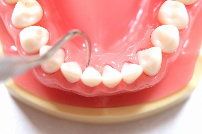 患者様と二人三脚の歯周病治療