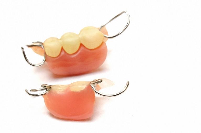 豊中のながよしデンタルクリニックでは、部分入れ歯の種類が豊富です。
