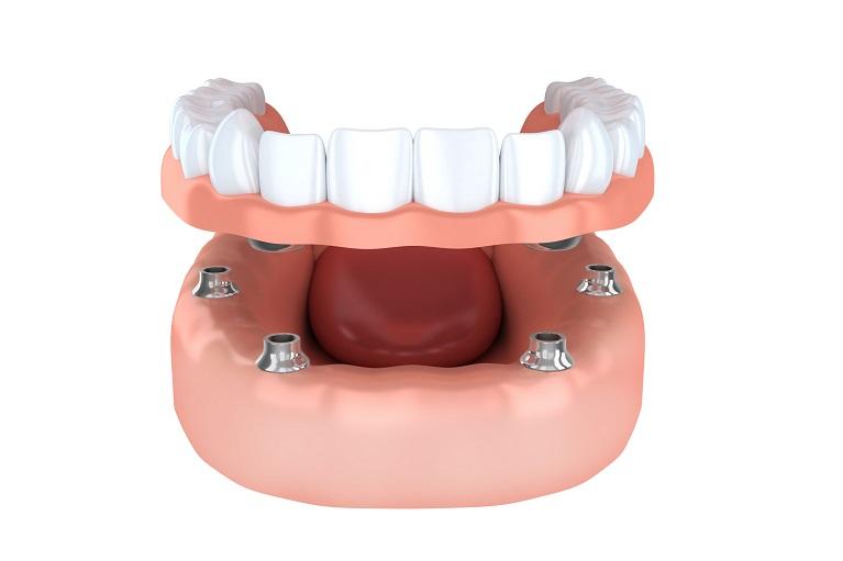 豊中のながよしデンタルクリニックでは、インプラント義歯を取り扱っています