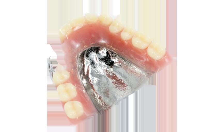 豊中のながよしデンタルクリニックでは金属床の入れ歯を取り扱っています。