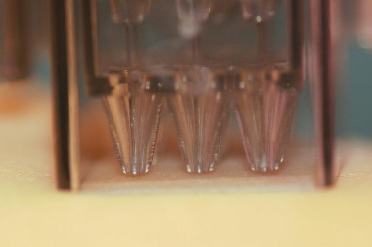 患者様に合わせた水光注射