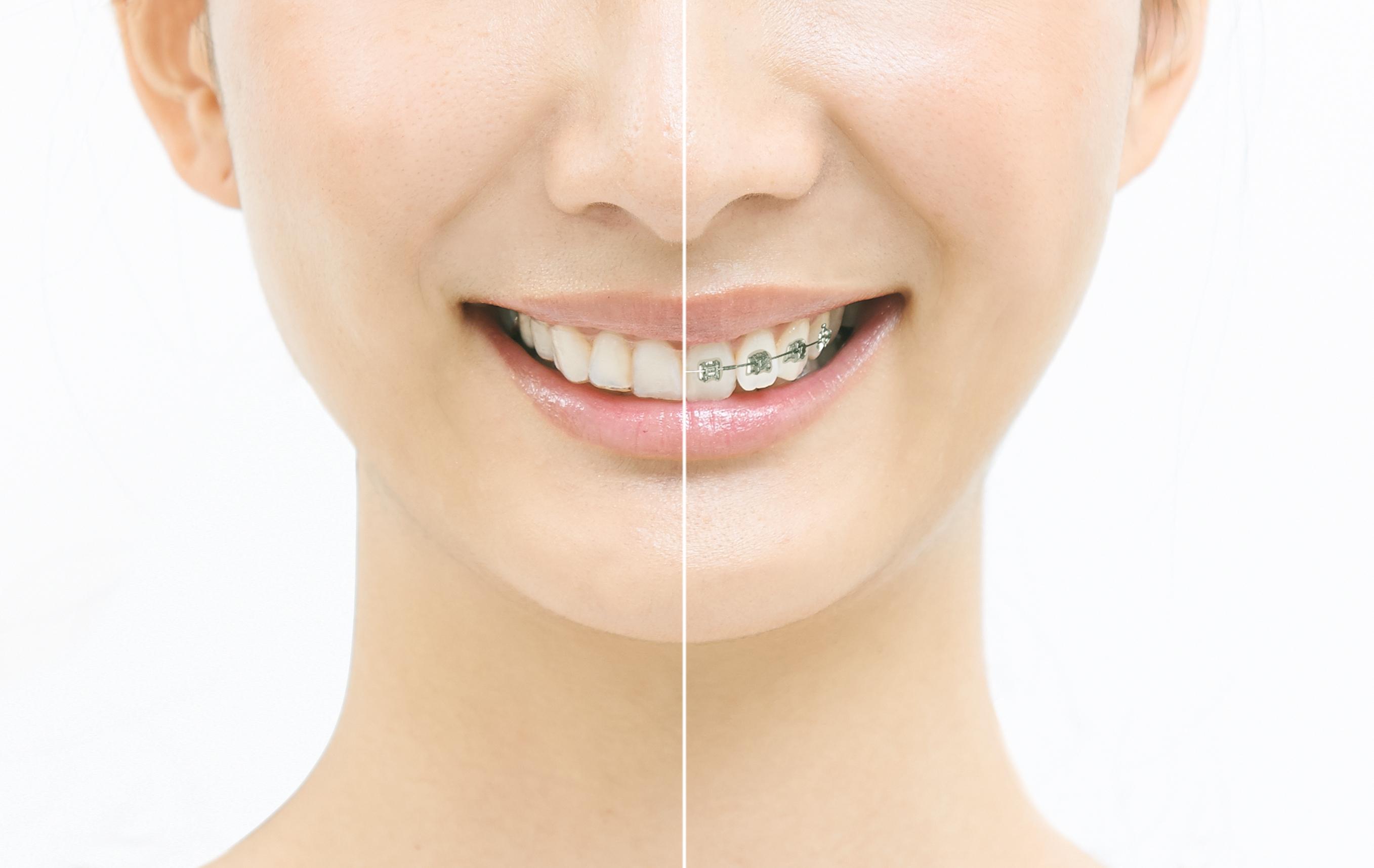 矯正治療前の親知らずの抜歯をすすめる理由