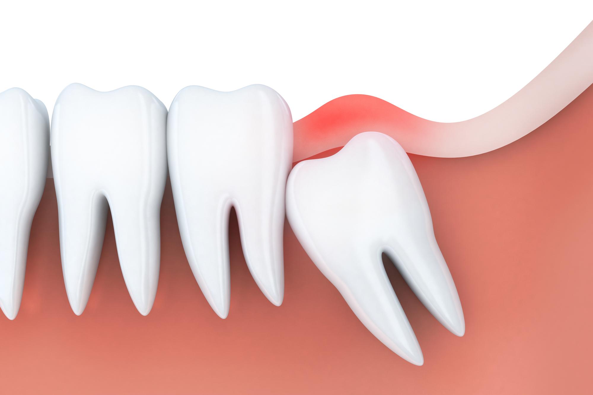 豊中のながよしデンタルクリニックでは、難症例の親知らずの抜歯が行えます
