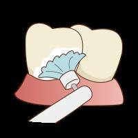 豊中の歯のクリーニングならながよしデンタルクリニック