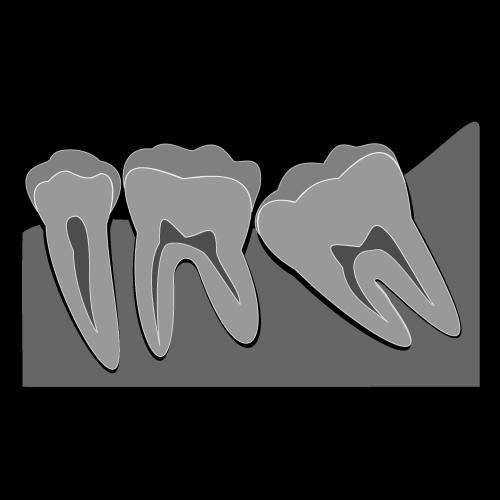 豊中で痛みがほとんど出ない親知らずの抜歯なら、ながよしデンタルクリニック